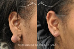 Photo of a patient before and after a procedure. Large keloid of earlobe