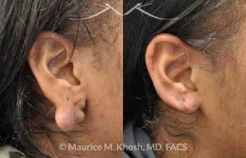 Cauliflower Ear Repair New York
