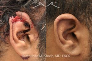 Photo of a patient before and after a procedure. Repair of ear laceration with exposed cartilage