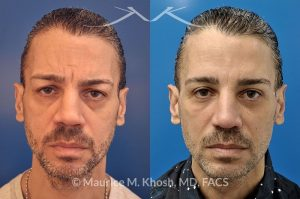 Photo of a patient before and after a procedure. Botox
