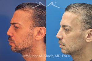 Photo of a patient before and after a procedure. Repair of nose fracture