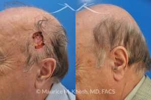 Photo of a patient before and after a procedure. Moh's repair of scalp