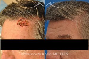 Photo of a patient before and after a procedure. Moh's repair of forehead scalp