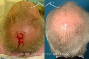 Photo of a patient before and after a procedure. Moh's defect, scalp repair