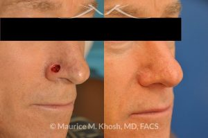 Photo of a patient before and after a procedure. Moh's defect of the nose repair