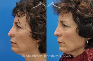 Photo of a patient before and after a procedure. Secondary repair of Moh's defect of the nose