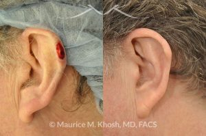 Photo of a patient before and after a procedure. Moh's defect