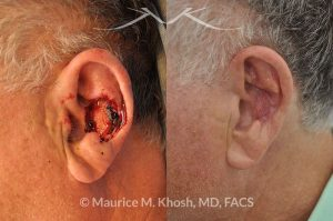 Photo of a patient before and after a procedure. Moh's repair of the ear with skin graft and composite graft