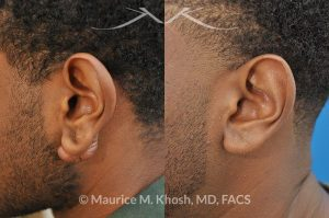 Photo of a patient before and after a procedure. Keloid of left ear