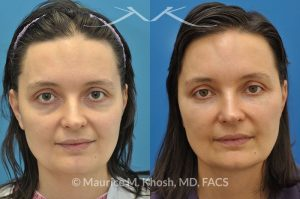 Photo of a patient before and after a procedure. Fat graft to the face