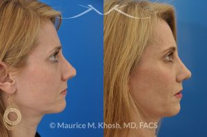 Photo of a patient before and after a procedure. This young lady complained of difficulty breathing, significant asymmetry of the nasal tip, and unnatural tip appearance on profile view of the nose following her primary rhinoplasty. The tip symmetry was restored and profile appearance was improved through revision tip rhinoplasty with cartilage grafts.