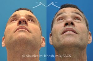 Photo of a patient before and after a procedure. Twisted and crooked nose - Nasal obstruction was the main complaint of this gentleman with an extremely deviated septum leading to a very crooked nasal tip. The open rhinoplasty approach was used to straighten the septum and the the tip of the nose.
