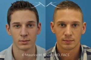 Photo of a patient before and after a procedure. Excessively long nose - This young man was bothered by the over projection of the tip of his nose. An open rhinoplasty technique was used to push the tip closer to the face and narrow his nostrils.