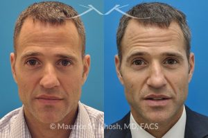 Photo of a patient before and after a procedure. Rhinoplasty for twisted nose