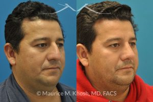 Photo of a patient before and after a procedure. Male rhinoplasty - This gentleman with Hispanic ethnicity was interested in rhinoplasty to address droopy nasal tip, large nasal hump, and crooked appearing nose. Surgery was performed via open rhinoplasty approach.