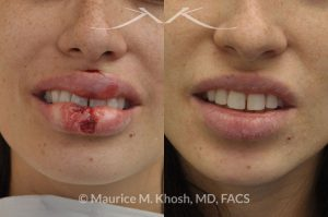 Photo of a patient before and after a procedure. Repair of lip laceratin - dog bite