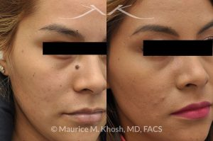 Photo of a patient before and after a procedure. Mole (nevus) removal from the face