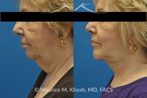 Photo of a patient before and after a procedure. Neck lift - This 70 year old lady with extensive laxity of skin in the central neck with droopy appearing neck and