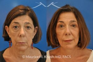 Photo of a patient before and after a procedure. Brow lift - This 65 year old lady had previously undergone a facelift operation at age 48. She was unhappy with the aged appearance of her brow, eyes, mouth, and neck which made her look tired and sad. She underwent Revision SMAS facelift, endoscopic brow lift, upper and lower blepharoplasty.