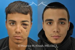 Photo of a patient before and after a procedure. Facial Fracture - This 19 year old had suffered a severely broken and displaced left cheek bone fracture due to a baseball injury. The left cheek bone had become flattened and he had lost his cheek projection. The broken bone was exposed thorough incisions inside the mouth and inside the eyelid, thereby eliminating any visible scars. The broken bones were realigned and stabilized with titanium plates.