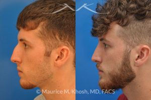 Photo of a patient before and after a procedure. Hump reduction rhinoplasty - his young man wanted rhinoplasty to remove a large bony hump. He was satisfied with his nasal tip. Rhinoplasty was performed via the closed (endonasal) approach.