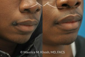 Photo of a patient before and after a procedure. Mole removal from the corner of the mouth