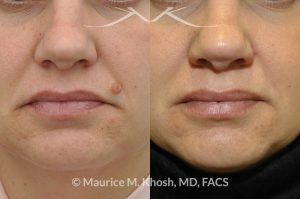 Photo of a patient before and after a procedure. Mole removal from the left upper lip