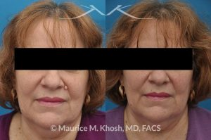 Photo of a patient before and after a procedure. Mole removal from the left upper lip near the nose