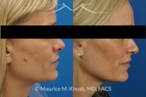 Photo of a patient before and after a procedure. Mole removal from the right cheek