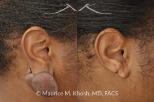 Photo of a patient before and after a procedure. Recurrent keloid of earlobe - Keloid from this earlobe had been previously excised twice. On each occasion, the keloid recurred within a few months. The keloid was surgically removed and post excision Kenalog injections have helped to prevent keloid recurrence. The picture shows one year post operative results.