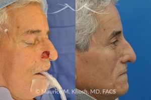 Photo of a patient before and after a procedure. Picture of skin cancer of nose before removal, after Moh's surgery, and following reconstruction - This 69 year old gentleman had Basal Cell Carcinoma of the skin of the right nasal lobule (shown on the left side). The skin cancer was removed via the Mohs technique resulting in near total loss of the right nasal ala (central picture). The nose was reconstructed in a two stage operation utilizing a right nasolabial flap and cartilage graft. The final results are shown on the right side of the picture.