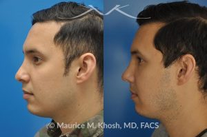 Photo of a patient before and after a procedure. Revision rhinoplasty to improve breathing and refine the tip - This 31 year old had previously undergone a nose job operation at age 17. He had breathing difficulty from both sides of the nose. He also disliked the flat, wide, asymmetric, and under-projected appearance of the tip of the nose. Revision rhinoplasty was performed to restore breathing and improve the appearance of the tip of the nose. Open approach rhinopalsty was used to place bilateral spreader grafts, left alar strut graft, narrow the tip, and improve the projection of the tip of the nose.