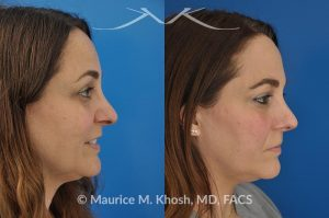Photo of a patient before and after a procedure. Nose job to refine tip - This 42 year old had suffered major nose and upper lip trauma at age 20. The tip of the nose had become progressively crooked and the right side appeared dented. Open approach rhinoplasty was used to reconstruct the nasal tip. Surgery allowed restoration of symmetry to the nasal tip cartilages and subtle refinement of the nasal tip.