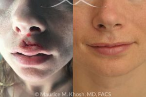 Photo of a patient before and after a procedure. Torn upper lip repair - This 25 year old suffered an upper lip laceration due to a surfing accident. She had repair of the laceration locally in Central America, but had to undergo revision of the repair when she returned to New York. The photograph is three months after the repair.