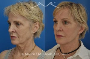 Photo of a patient before and after a procedure. Facelift, neck lift, temporal brow lift - 65 years old lady interested in improving her sagging neck, eliminating her jowls, and elevating the droopy eyebrow position. She underwent SMAS facelift, neck lift, and temporal brow lift.