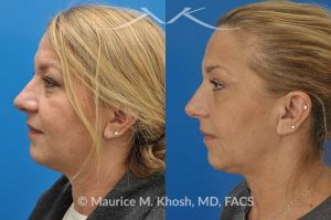 Photo of a patient before and after a procedure. Kybella - A 52 year old looking for non surgical treatment of her excess neck fat and double chin. She did not wish to have neck liposuction and preferred Kybella injections in New York City to dissolve the neck fat.