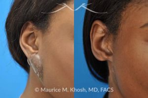 Photo of a patient before and after a procedure. Recurrent keloid of ear - This 24 year old had a keloid of the right which had been excised three times in the past. Each time the keloid recurred and became larger. She was treated with surgical excision followed by radiation therapy. The pictures depict a one year post operative result.