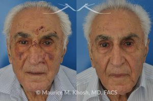 Photo of a patient before and after a procedure. Broken nose repair - This gentleman suffered a nose fracture when he tripped and fell. The nose fracture was repaired in the office under local anesthesia. Before and after pictures of nose fracture repair.