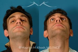 Photo of a patient before and after a procedure. Tip and dorsum enhancement - This gentleman wanted rhinoplasty to get rid of his droopy tip and the hump in his lower nose. He underwent rhinoplasty through the open approach.