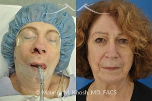 Photo of a patient before and after a procedure. Skin cancer repair involving the nostril - Patient had undergone skin cancer removal from the nose and the right nostril. She had lost skin and cartilage resulting in loss of nasal tip support. She was reconstructed with a composite graft of cartilage and mucosa (skin inside the nose). Before and after pictures of skin cancer repair.