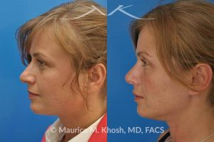 Photo of a patient before and after a procedure. Nose job to narrow the tip, shave the bridge, and improve tip symmetry - This patient had difficulty breathing due to a deviated septum. She desired a more symmetric and narrow tip and slight lowering of the nasal bridge and elevation of the tip. Before and after pictures after rhinoplasty.