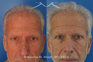 Photo of a patient before and after a procedure. 65 year old had noted a enlarging hard mass in the left upper forehead - This 65 year old who had noted a progressively enlarging hard mass in the left upper forehead. The clinical examination finding was consistent with an osteoma. The osteoma was successfully removed as an office procedure utilizing local anesthesia. The incision was perfectly hidden inside the hairline above the location of the osteom. The incision was designed to allow hair growth through the scar, thereby camouflaging it.