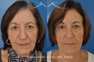 Photo of a patient before and after a procedure. Osteoma removal - 68 year old lady interested in osteoma removal in Manhattan. Problem: Hard, round, raised mass underneath the forehead skin. Procedure: Osteoma removal as an office procedure, under local anesthesia.