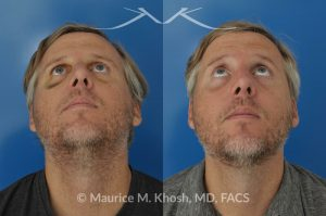 Photo of a patient before and after a procedure. Repair of broken nose