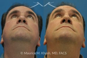 Photo of a patient before and after a procedure. Right eye socket fracture repaired with bone graft
