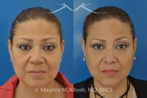 Photo of a patient before and after a procedure. Removal of skin cancer in the tip of the nose with repair