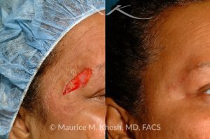 Photo of a patient before and after a procedure. Repair of brow defect