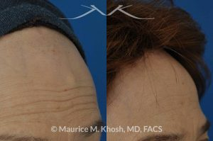 Photo of a patient before and after a procedure. Forehead osteoma, forehead bony hump