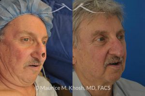 Photo of a patient before and after a procedure. Repair of Moh's defect of the lower nose after removal of basal cell cancer of skin. Bilobed flap technique