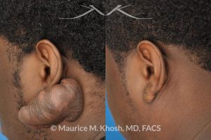 Photo of a patient before and after a procedure. Treatment for a very large keloid on the ear - One year post op result.